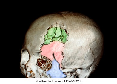 3 d rendering image of a skull of a patient with depression fractures of left frontal, temporal, supraorbital and zygomatic bones.