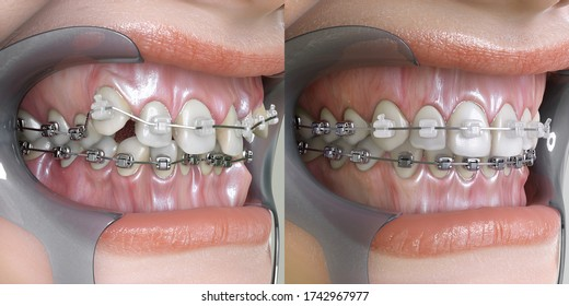 3D illustration of before and after dental appliance treatment. Orthodontic technology before and after.