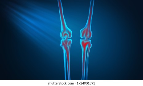 3d illustration of bone leg pain