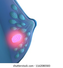 3d illustration of breast cancer from a side view