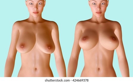 3d illustration of breast procedures before and after