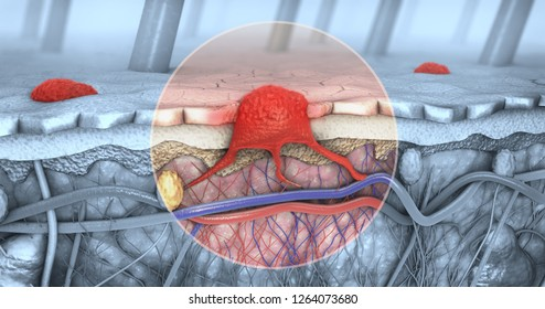 3d illustration of a cross-section of a diseased skin with melanoma that enters the bloodstream and lymphatic tract