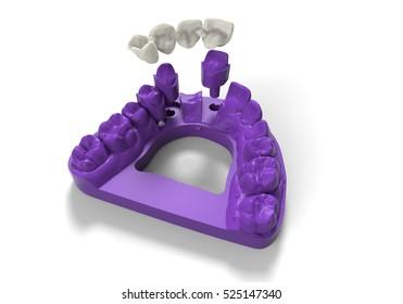 3D illustration dentures