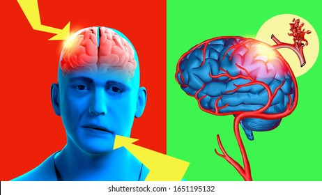 3d illustration. Facial asymmetry is a symptom of ischemic stroke. Bright color stroke concept poster.