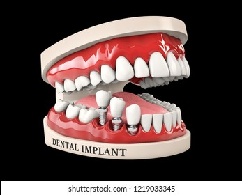 3d illustration of Human teeth and Dental implant isolated black