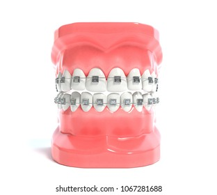 3d illustration of a mouth with braces