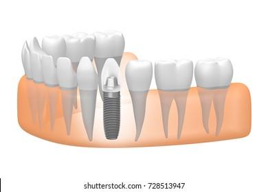 3D illustration/ 3D rendering - dental implant/ tooth implant.