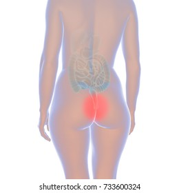 3d illustration showing female body with hemorrhoids