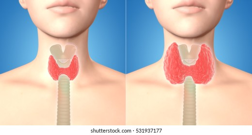 3D illustration showing normal and enlarged thyroid gland