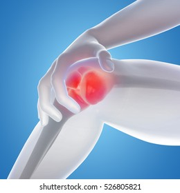 3D illustration showing osteoarthritis in the knee