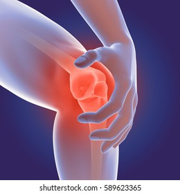 3d illustration showing osteoarthritis of the knee