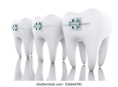 3D Illustration. Tooth with braces. Dental care concept. Isolated white background.