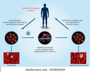 3d illustration of the use of CRISPR-Cas9 to treat sickle cell anemia