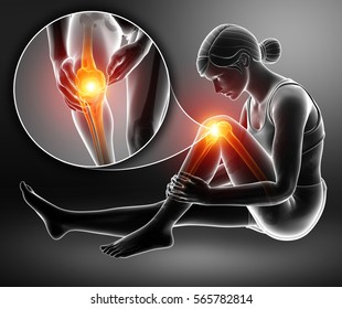 3d Illustration of Women Knee pain