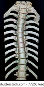 3d Image of Thoracic Spine - Front View