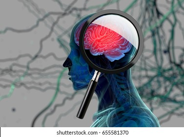 3D medical background with magnifying glass examining brain depicting alzheimers research. 3d illustration