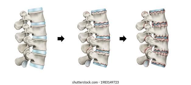 3d Medical illustration for explanation ankylosing spondylitis
