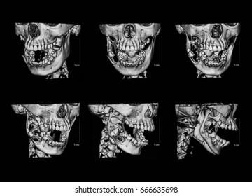 3D MRI (Three dimension magnetic resonance imaging of face ( facial bone), case of keratocystic odontogenic tumor (also keratocystic odontogenic)