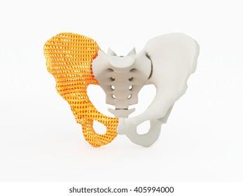 3d printed hip bone