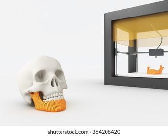 3d printed jaw