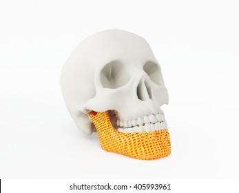 3d printed jaw bone