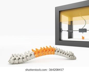 3d printed spine