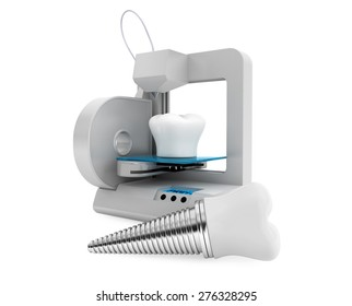 3d printer printing tooth implant on a white background