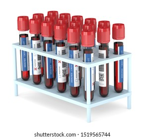 3d render of  blood samples with herpes test in rack over white background