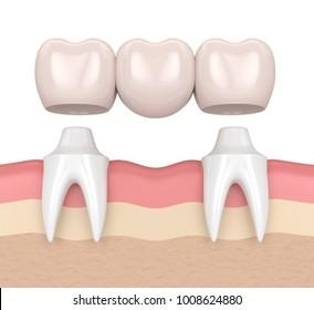 3d render of dental bridge with dental crowns in gums