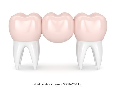3d render of dental bridge with dental crowns isolated over white background