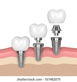 3d render of dental implants in gums over white background