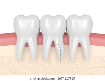 3d render of gums with cracked tooth root over white background. Vertical fracture. Different types of broken teeth concept.