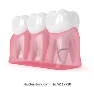 3d render of gums with cracked tooth root over white background. Different types of broken teeth concept.