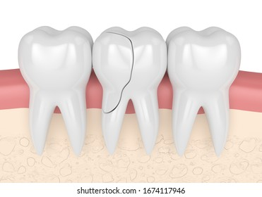 3d render of gums with treatable cracked tooth over white background. Fractured cusps. Different types of broken teeth concept.
