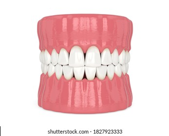3d render of human jaw with black triangles between teeth isolated over white background