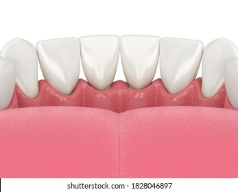 3d render of human lower jaw with black triangles between teeth