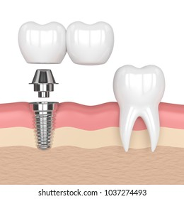 3d render of implant with dental cantilever bridge and healthy tooth in gums