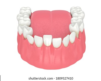 3d render of  jaw with abnormal teeth position. Orthodontic treatment concept.