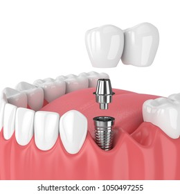 3d render of jaw with dental cantilever bridge  isolated over white background
