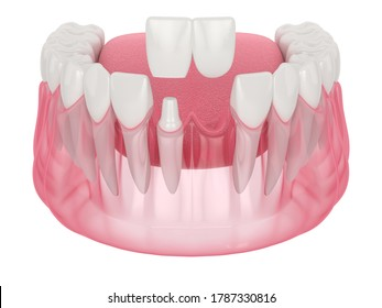 3d render of  jaw with dental cantilever bridge over white background
