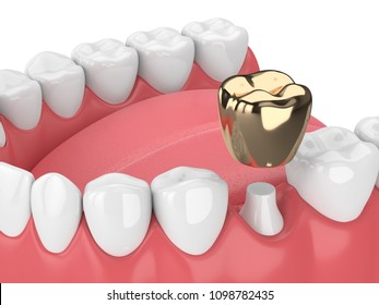 3d render of jaw with dental golden crown filling in gums over white background