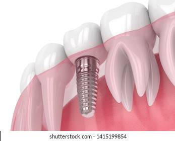 3d render of jaw with dental implant isolated over white background