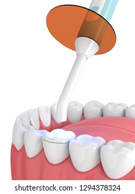 3d render of jaw with dental polymerization lamp and light cured onlay filling over white background