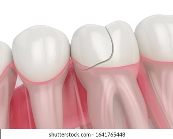 3d render of jaw with fractured tooth over white background. Types of broken teeth concept.