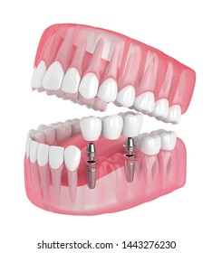 3d render of jaw with implants supported dental bridge isolated over white background