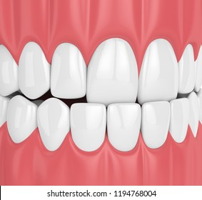 3d render of jaw malocclusion with underbite. Upper teeth behind lower teeth