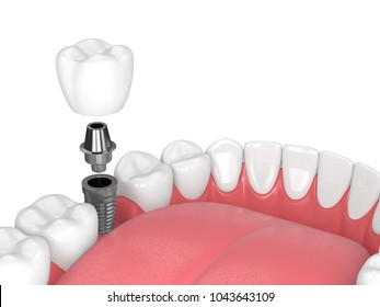 3d render of jaw with teeth and dental molar implant over white background