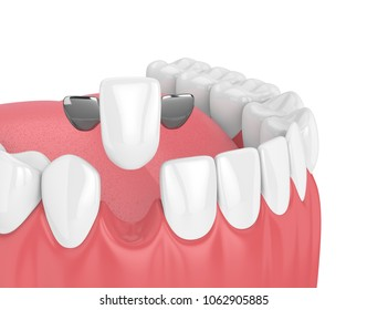 3d render of jaw with teeth and maryland bridge  in gums  isolated over white background