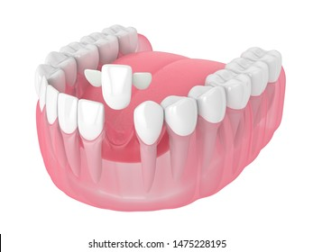 3d render of jaw with teeth and maryland bridge over white background