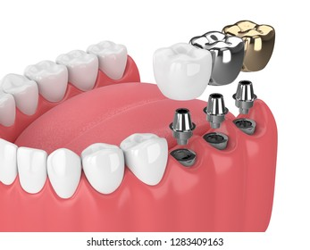 3d render of jaw with teeth and three types of implants over white